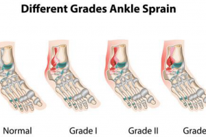 What is a Foot or Ankle Sprain or Fracture